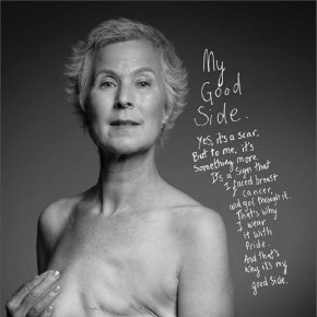 Breast Cancer Care ad Body Image After Breast Cancer 2013
